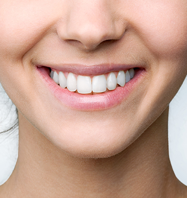 About teeth whitening